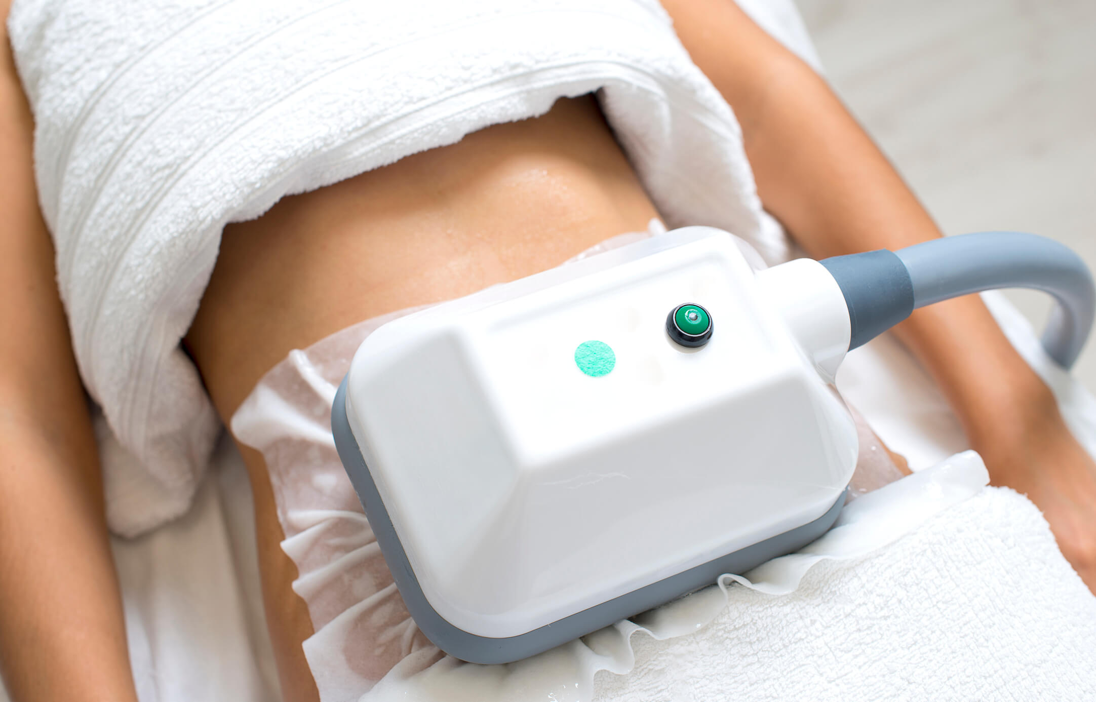 The effectiveness of Coolsculpting technology freezing fat from a women's stomach