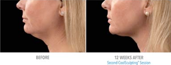 CoolSculpt Mini before and after for tough to treat areas
