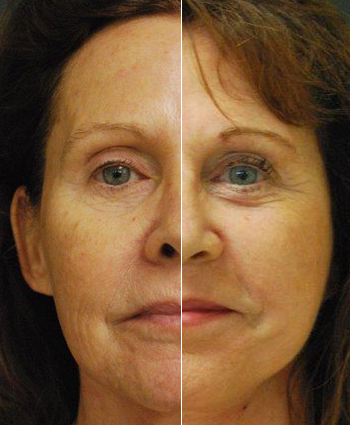 Before and After Images of Dr. Rotatori's Treatments and Procedures